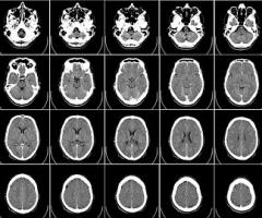 radiología-62942__340