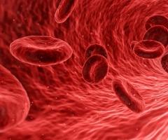 curso vih sida essscan