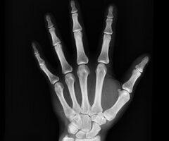 Técnicos Superiores en Imagen para el Diagnóstico