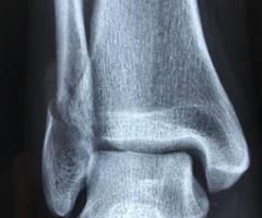 radiografía-3057768__340
