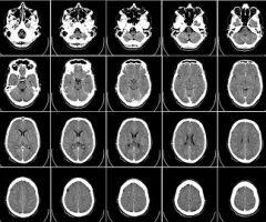 radiología-62942__340-1